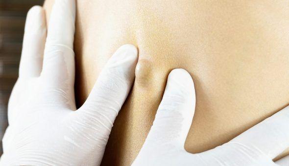 Заговор от кисты яичника и молочной железы