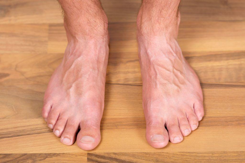 Заговор от грибка ногтей на руках, ногах