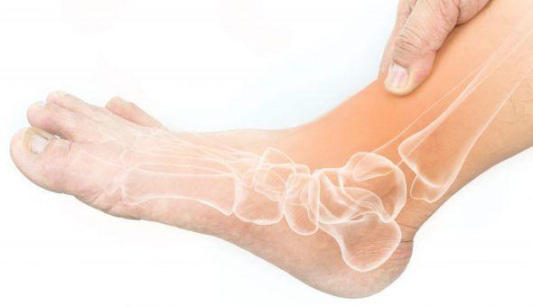 Заговор от косточки на ноге