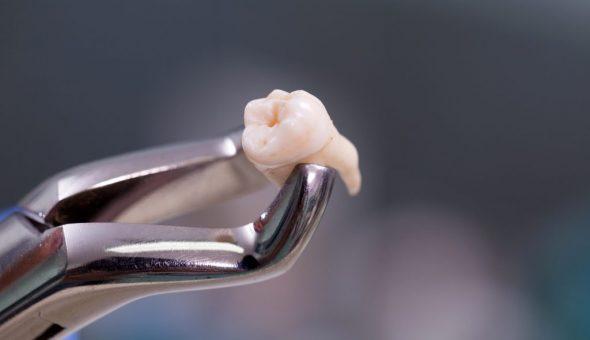 Народные приметы о зубах мудрости