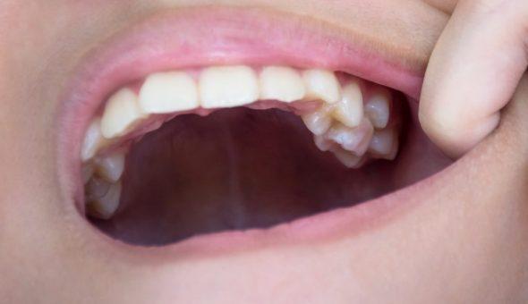 Зубы мудрости влияют на отношения в браке