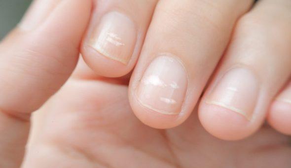 Значение белых пятен на ногтях левой руки